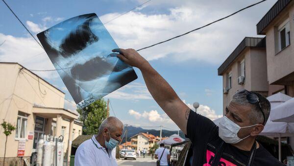 Човек позитиван на корону показује свој снимак плућа испред ковид болнице у Новом Пазару - Sputnik Србија