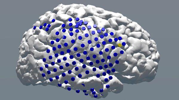 Elektrostimulacija mozga - Sputnik Srbija