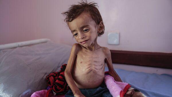 Изгладнело дете из Јемена - Sputnik Србија