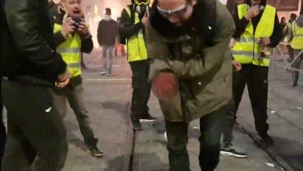 Крвав снимак с демонстрација у Бордоу - Sputnik Србија