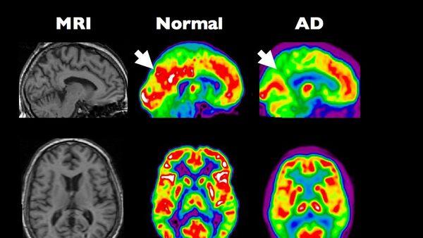 Скенер здравог и мозга оболелог од Алцхајмерове болести - Sputnik Србија