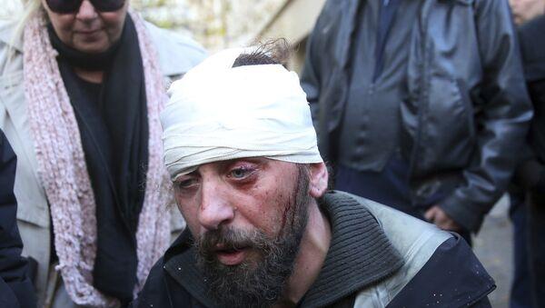 Грчки фотограф, дописник Спутњика Костис Дадамис након напада на протесту у Атини - Sputnik Србија