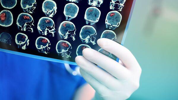 Рендгенски снимак мозга пацијента - Sputnik Србија
